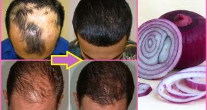 Hair Loss Treatment | Onion Juice for Hair Growth